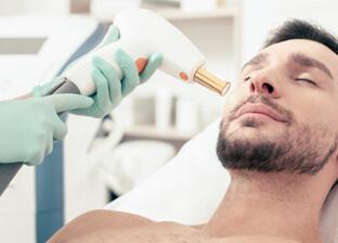 Laser frakcyjny: Laserowe odmładzanie skóry dla mężczyzn