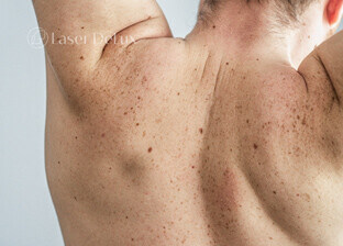 Skin discolouration removal for men