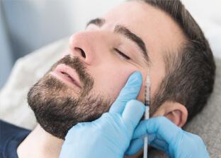 Zabiegi kwasem hialuronowym / wypełnienie  dla mężczyzn