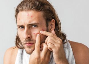 Redukcja Trądziku dla mężczyzn