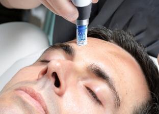 Skin micro-needling treatment (DermaPen®) for men